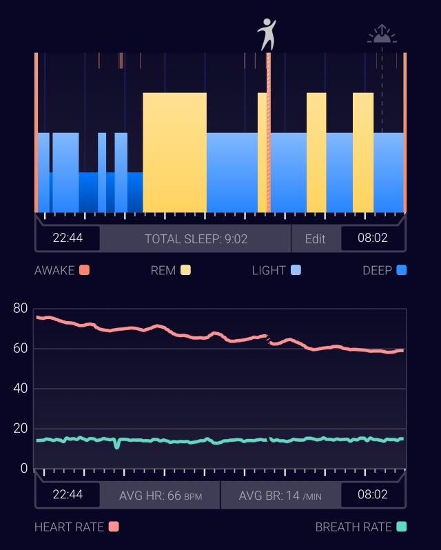 Sleeptracker's AI-powered cloud and proprietary sensor results in the sleep data I feel most confident about